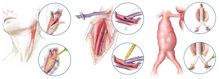 Operazione dal laser su vene varicose il prezzo
